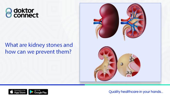 Kidney Stones: Six Proven Ways to Prevent Them